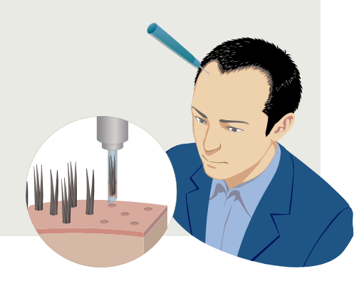 Flow of hair transplantation surgery