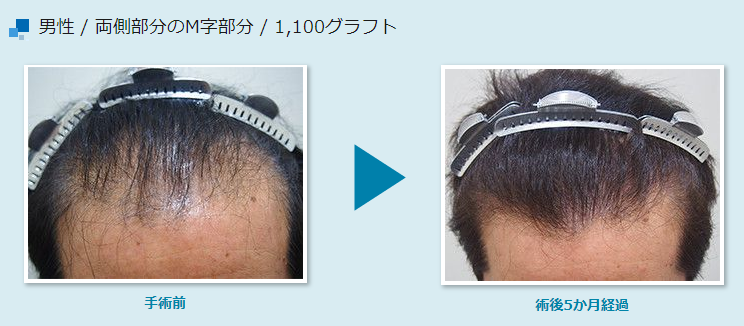 Results of hair transplantation surgery