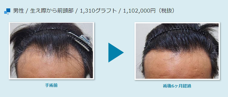 Effect of hair transplantation