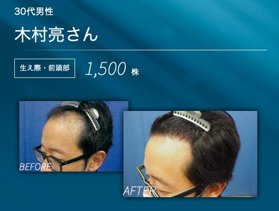 Finishing of hair transplantation surgery