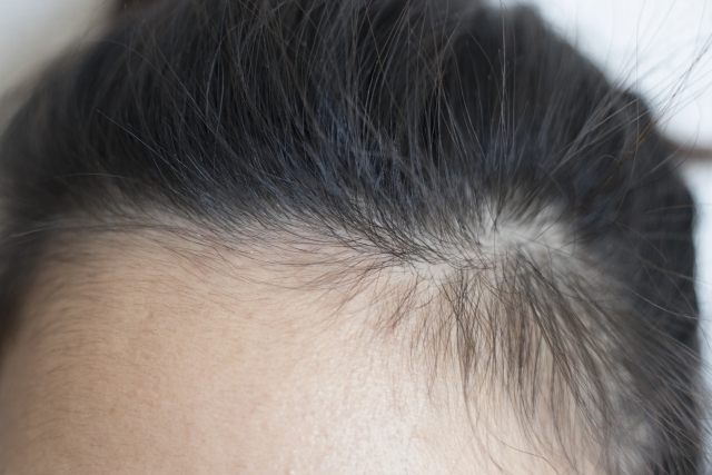 Number of hair loss