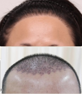 Unnatural hairline