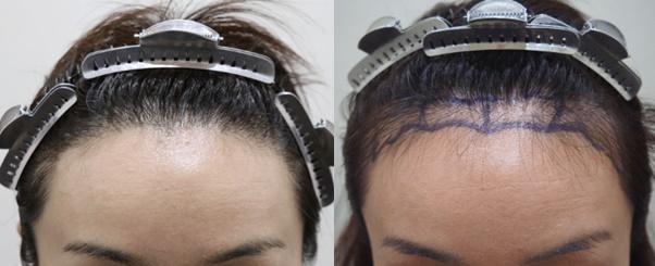 woman hair transplant