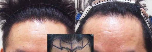 man hair transplant