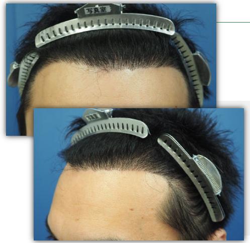 hair line