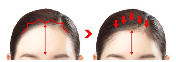Narrow your forehead