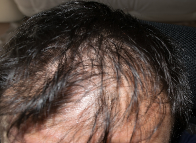 Initial hair loss